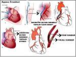 Dolaşım Sisteminin Sağlığını Koruyalım Konu Özeti